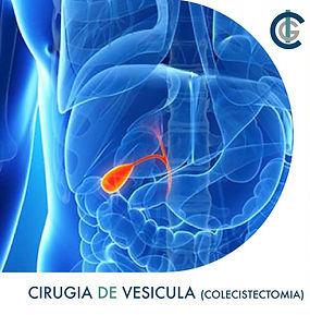 Cirugía de vesícula guadalajara