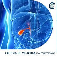 Cirugia de vesícula biliar