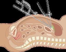 Laparoscopia, vesicula, gadalaar