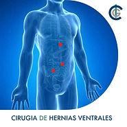 Hernia ventral, abdomen