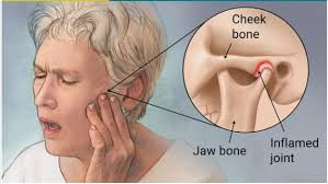 Jaw - TMJ Pain