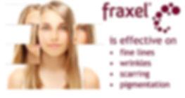 fraxel-effective.jpg