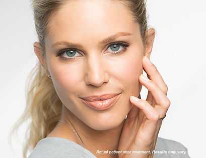 Renew Beauty Med Spa and Salon Botox