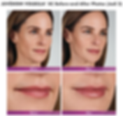 Renew Beauty Med Spa and Salon Juvederm Volbella cosmetic injection