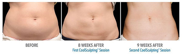 coolsculpting vs diet and exercise