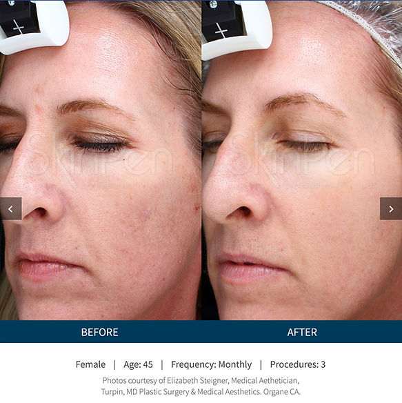 microneedling dallas