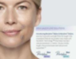Renew Beauty Med Spa and Salon Restylane Defyne