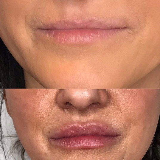 Lip Fillers by Nicole R.N. at Renew Beauty Med Spa