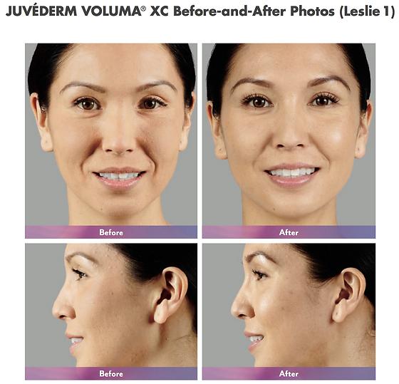 Renew Beauty Med Spa and Salon Juvederm Voluma