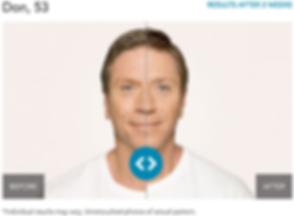 Renew Beauty Med Spa and Salon Radiesse