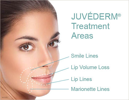 Renew Beauty Med Spa and Salon Juvederm