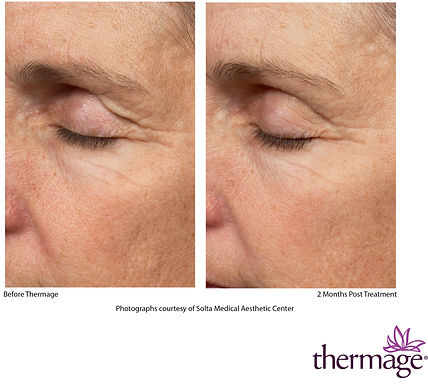 Thermage Before After SMAC_10.jpg