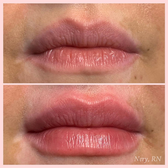 Lip Fillers by Nery R.N. at Renew Beauty Med Spa