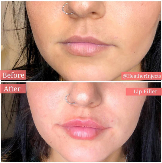 Volume added using Juvederm Ultra by Heather RN