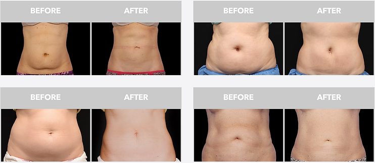 Coolsculpting Dallas