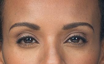 Botox Dallas