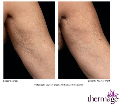Thermage Before After SMAC_03.jpg