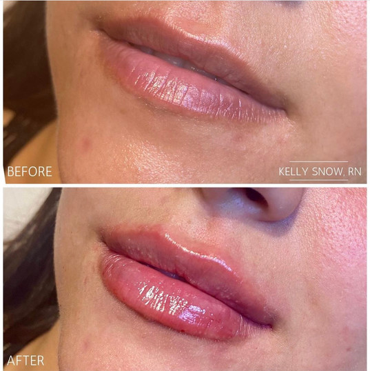 Lip Filler by Kelly R.N. at Renew Beauty Med Spa