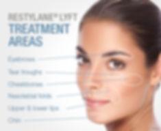 Renew Beauty Med Spa and Salon Restylane Lyft