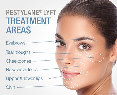 Renew Beauty Med Spa and Salon Restylane Lyft