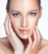 Renew Beauty Med Spa and Salon Photofacial