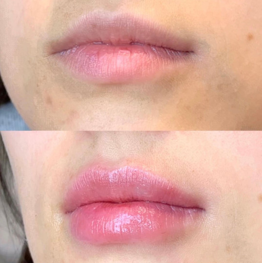 Lip Fillers by Alison R.N. at Renew Beauty Med Spa