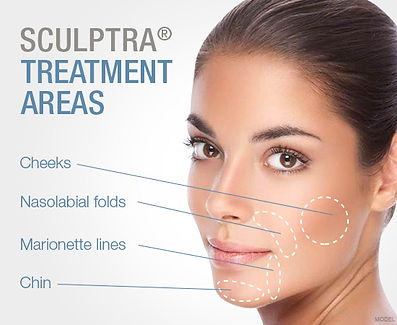 Renew Beauty Med Spa and Salon Sculptra