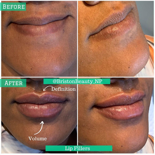 Lip Augmentation/Fillers with Briston N.P.