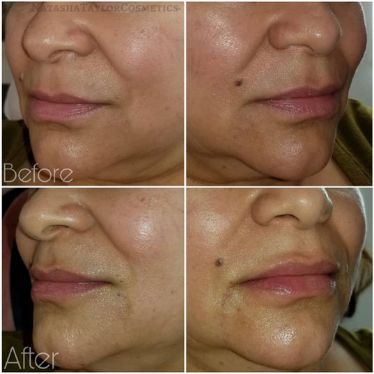 Lip fillers using Juvederm Ultra by Natasha at Renew Beauty Med Spa