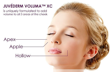 Renew Beauty Med Spa and Salon Juvederm Voluma