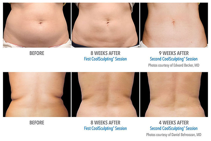 Coolsculpting before and after dallas