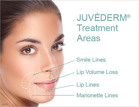 juvederm dallas