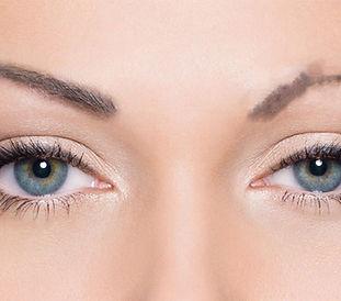 eyebrowtransplant.jpg