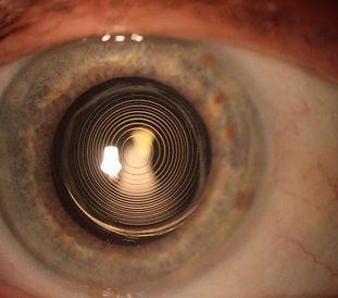 multifocal lenses.jpg