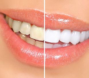 teethwhiting.jpg