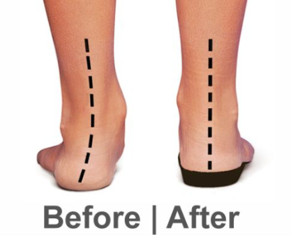 Orthotic End Result our Podiatrits Goal