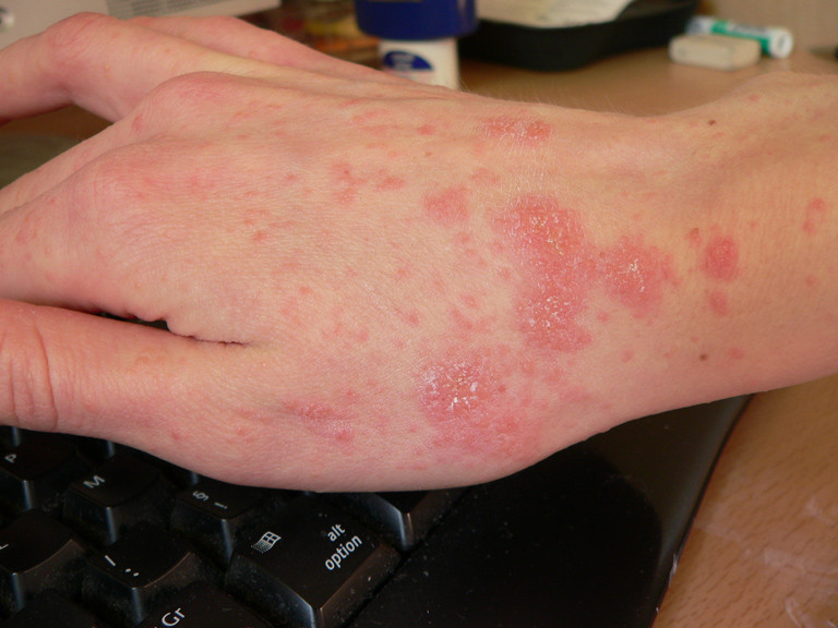 scabies infection on the hand, bug bites identified by sterifab
