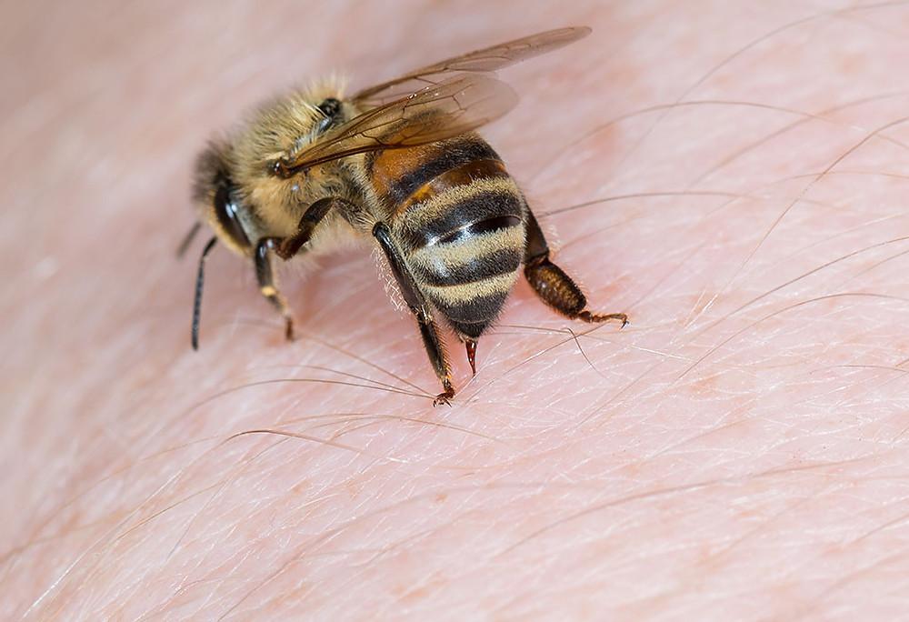 bee stinging a human, sterifab identifies different bites