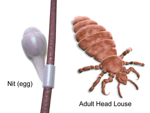 nit and adult head lice image