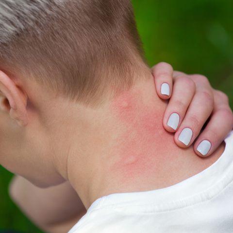 mosquito bites on the neck, sterifab identifies bug bites