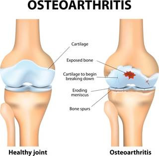Arthritis, osteoarthritis and workers compensation in Vermont