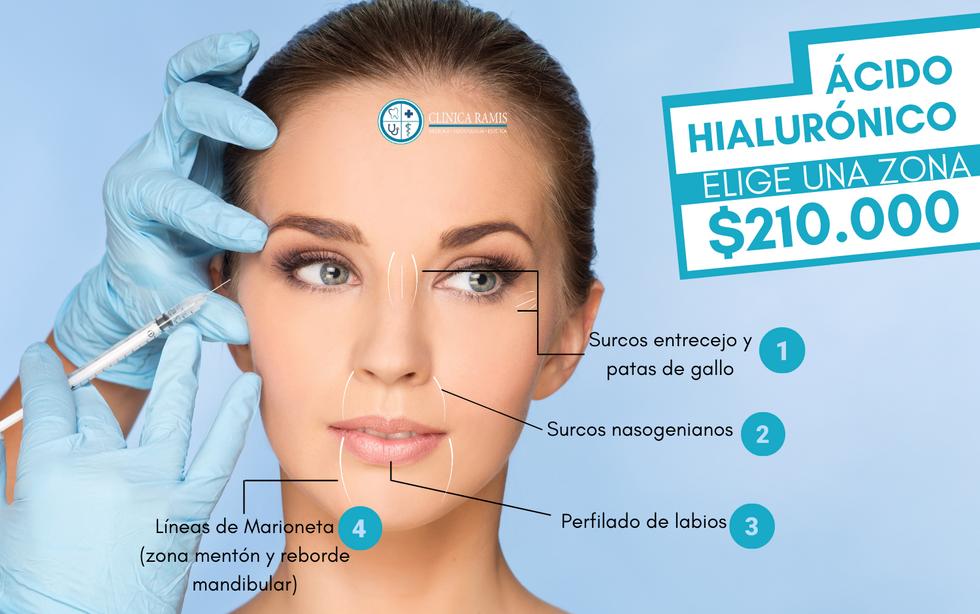 acido hialuronico.png