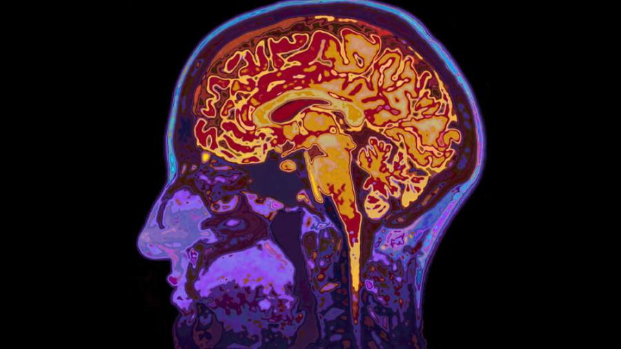 Risk for Dementia: Head Trauma