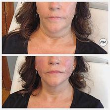 Non surgical face lift, thread lift
