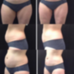 Coolsculpting Long Island best results near me at the aesthetic room, before and after coolsculpting