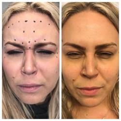 Botox wrinkles rochester ny