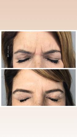 Botox Rochester NY Monroe MedSpa