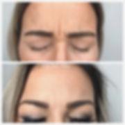 medical spa rochester NY, Botox rochester ny, Dysport, Wrinkles, Best Botox rochester ny, hydrafacial rochester ny, laser spa rochster ny