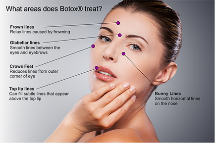 Botox Rochester NY, best Botox rochester ny, botox injections rochester ny, botox near me rochester ny