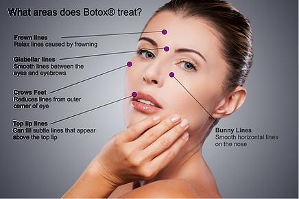 Botox Buffalo NY, best Botox Buffalo NY, botox injections rochester, botox near me Buffalo NY